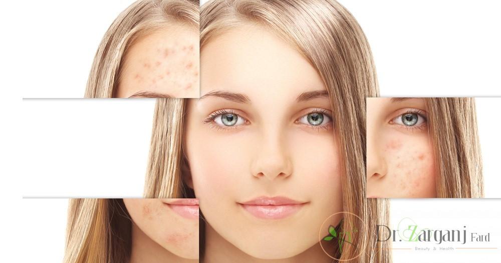 چه نوع لیزرهایی برای از بین بردن لکه های پوستی و روشن کردن پوست وجود دارند؟