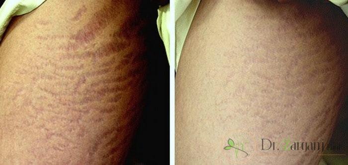 آیا روش کربوکسی تراپی ترک های پوستی به مشاوره با پزشک متخصص زیبایی نیاز دارد؟