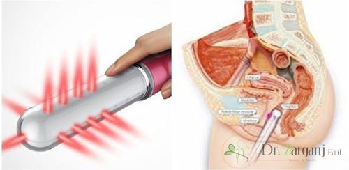 آمادگی قبل از لیزر درمانی به جهت تنگ کردن واژن