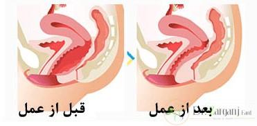 از ویژگی های تنگ کردن واژن با لیزر می توان موارد زیر را نام برد: