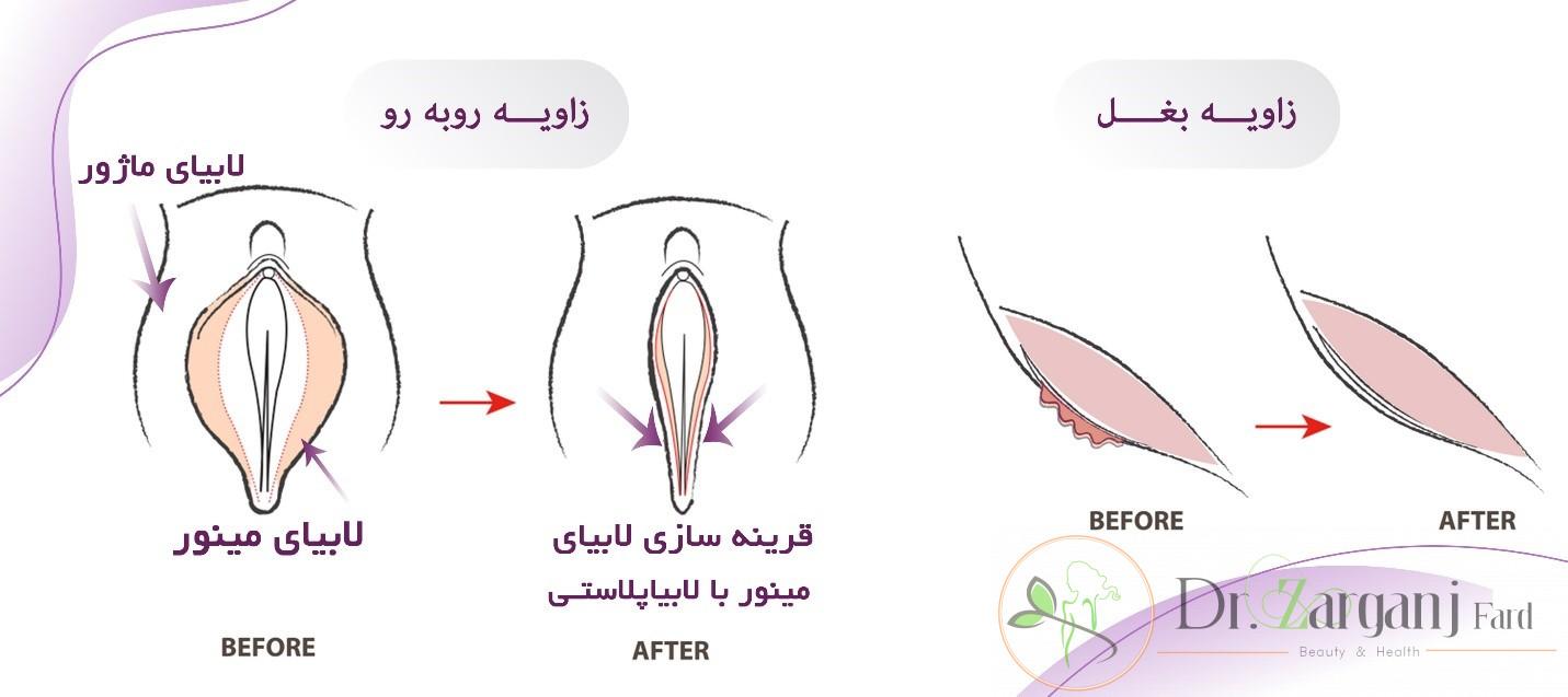 لابیاپلاستی، یک جراحی زیبایی بدون خطر و با ریسک پایین