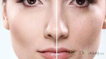 آیا روش های کربوکسی تراپی و مزوتراپی به مراقبت های قبل و بعد از انجام عمل زیبایی نیاز دارند؟