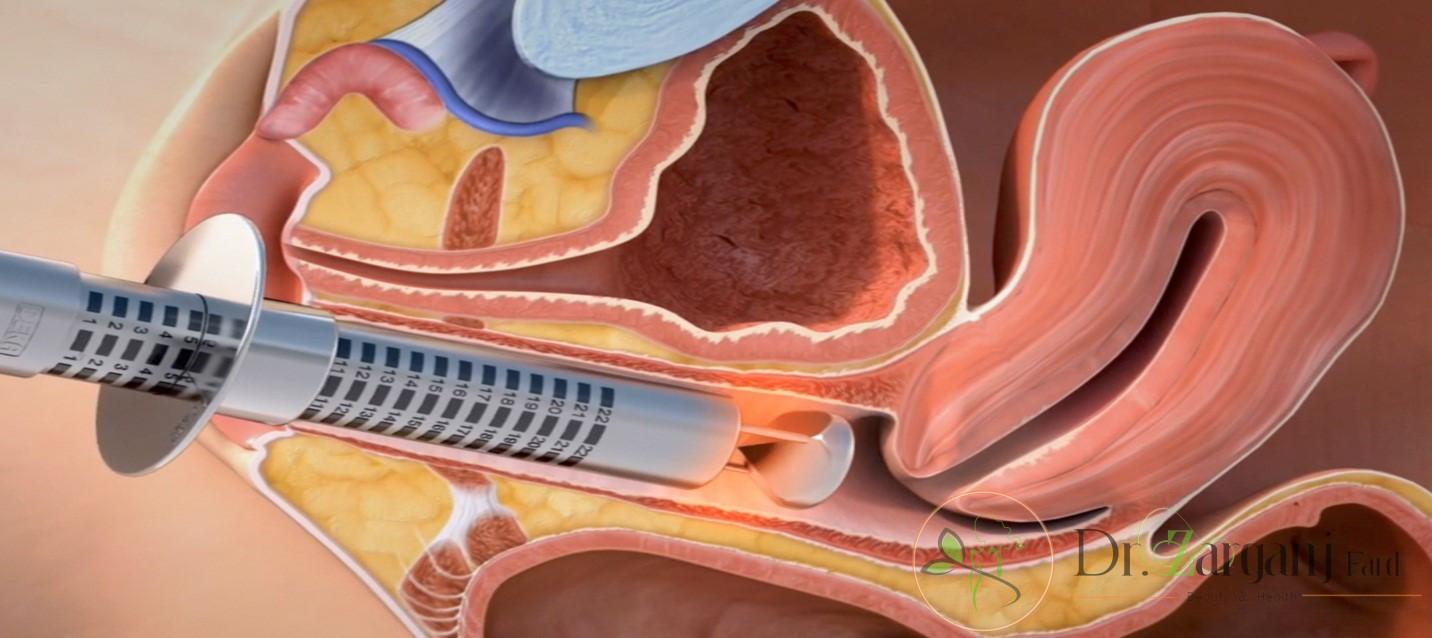 درمان تنگ کردن واژن به واسطه لیزر چگونه انجام میگیرد؟