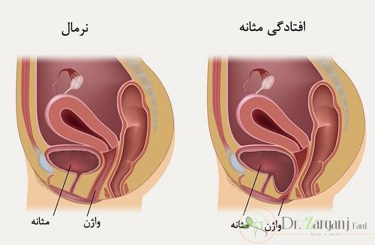 آیا اطلاعاتی درباره روش کار مونالیزا تاچ برای جوان سازی واژن دارید؟