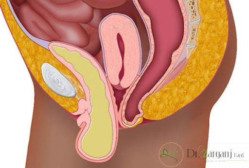 آیا می دانید نحوه کار لیزر برای برطرف کردن گشادی واژن چگونه است؟