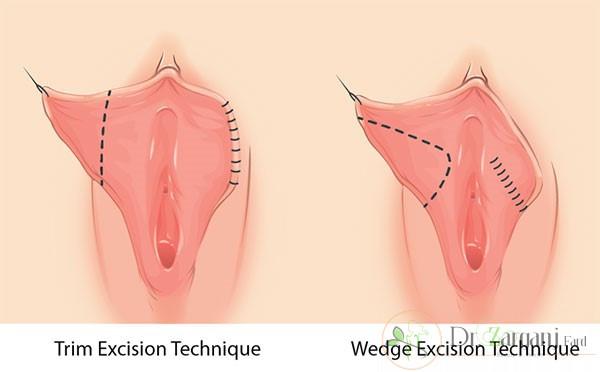انواع جراحی های زیبایی ناحیه ی واژینال