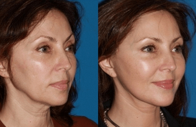 پزشک متخصص زیبایی برای انجام مراقبت های بعد از تزریق چربی به بیمار موارد زیر را تجویز می کند.