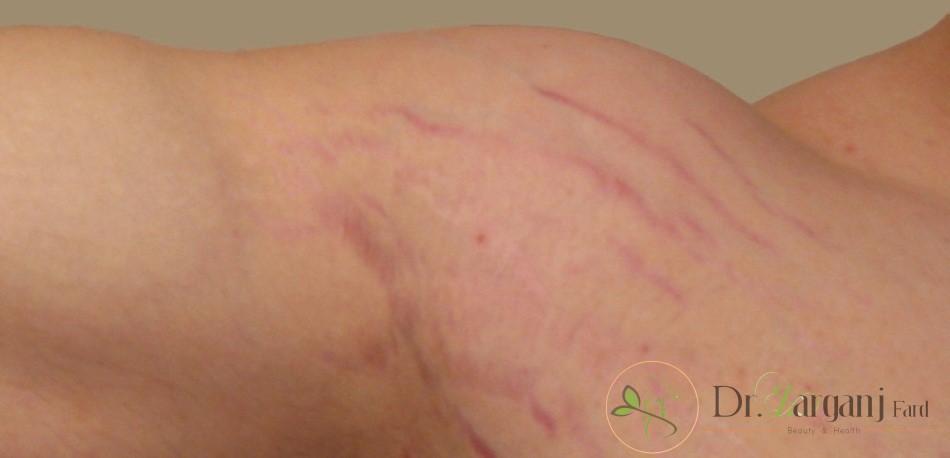 علائم و نشانه های ترک های پوستی چیست؟