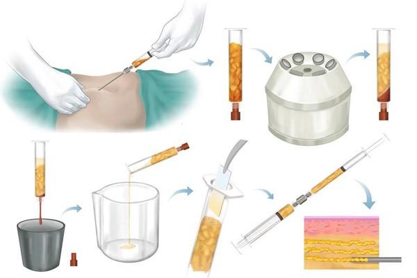 آیا پزشک می تواند با اولین مرحله از لیپوساکشن چربی از بدن آن را برای استفاده از دفعات بعد در فرد مورد استفاده قرار دهد یا خیر؟