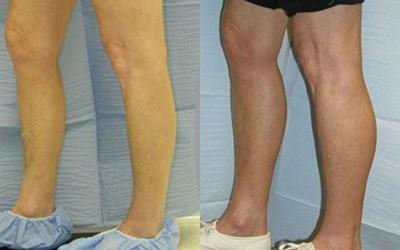 چه کسانی برای تزریق چربی به ساق پا مناسب هستند؟