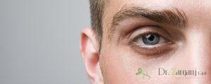 رفع گودی زیر چشم با تزریق چربی