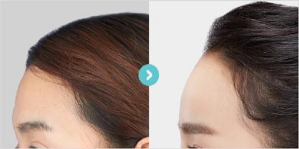 یکی از روش های موثر برای جوانسازی صورت