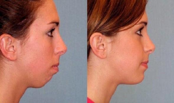 آشنایی با تزریق چربی از طریق دهان