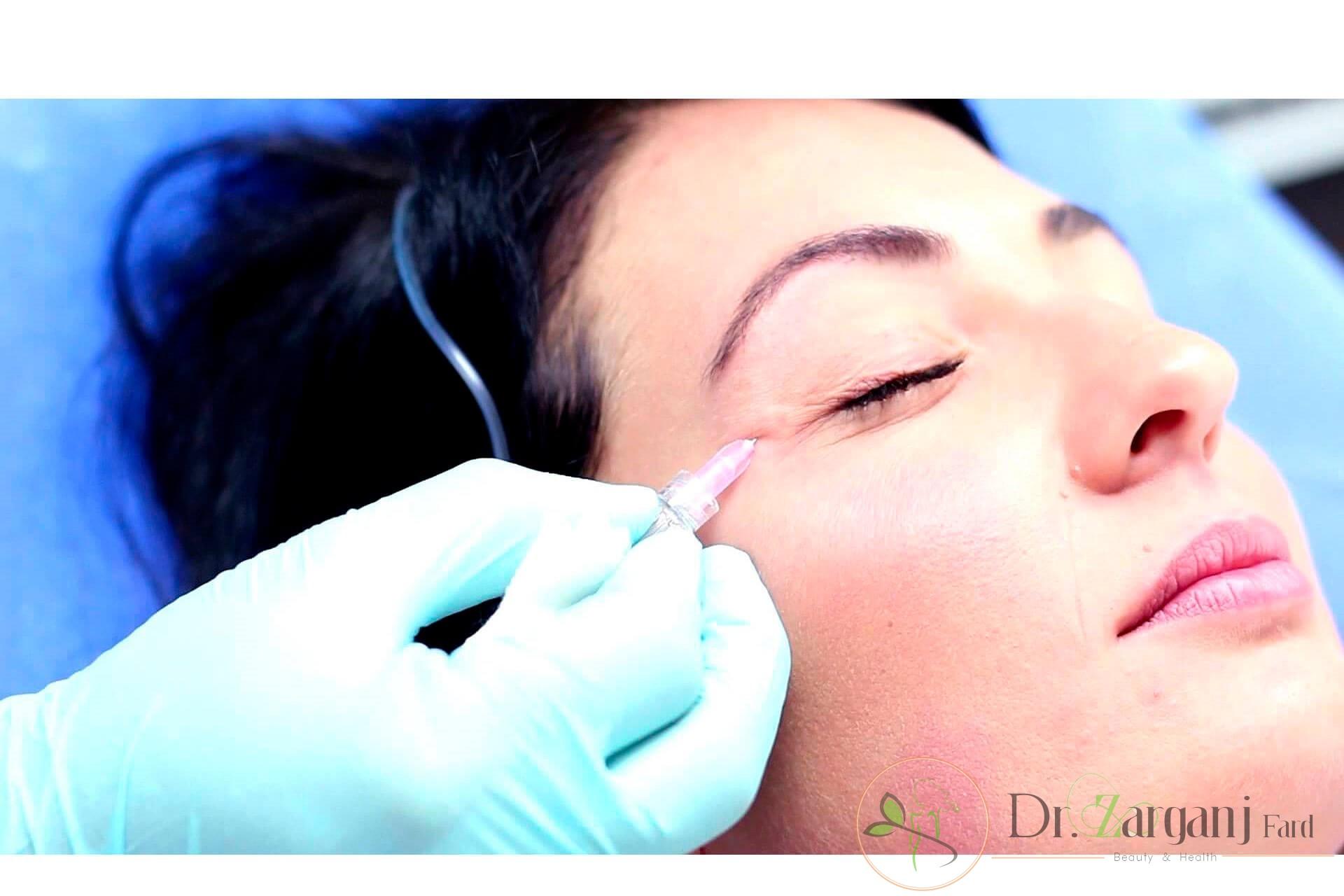 آیا روش کربوکسی تراپی زیر چشم در بیماران درد دارد؟
