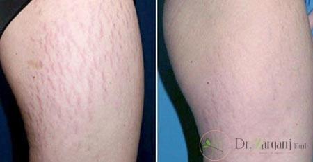 تشخیص ترک های پوستی چگونه صورت میگیرد؟