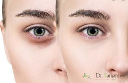 بعد از تزریق چربی برای رفع گودی زیر چشم چه نکاتی را باید رعایت کرد؟