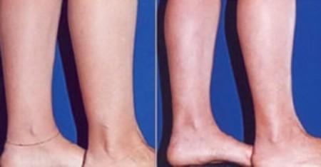 هزینه تزریق چربی به ساق پا