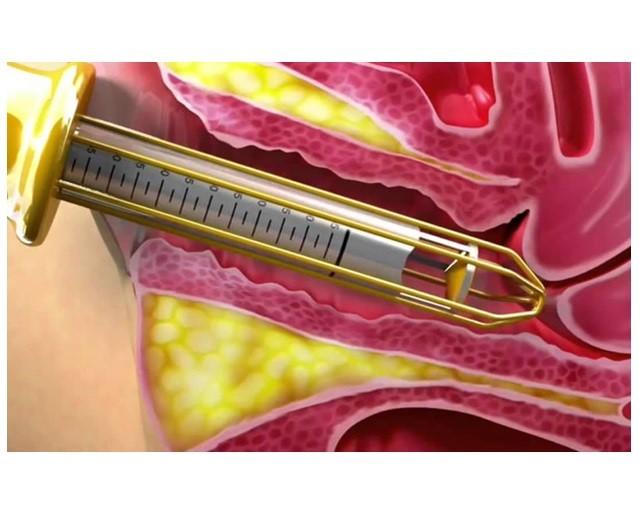 مراقبت های بعد از انجام دادن لیزر واژن