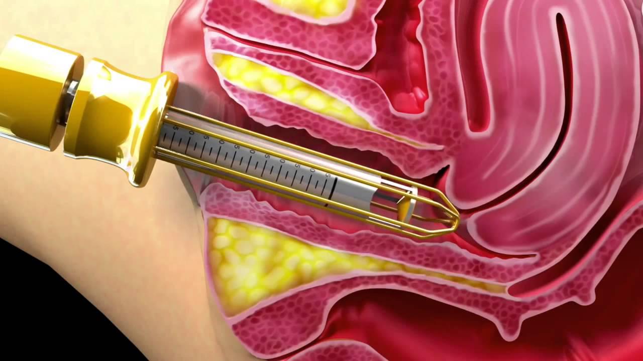 تجربه عمل تنگی واژن به شیوه جراحی پرینورافی