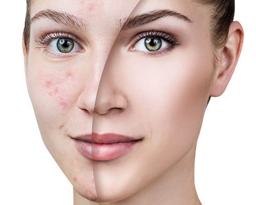 راه های درمانی برای لک صورت چیست؟