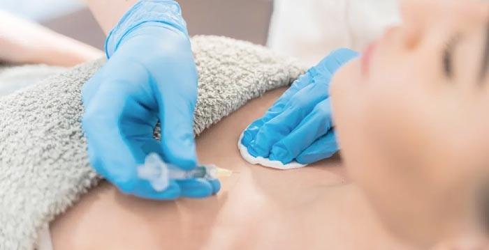 از نظر بهترین دکتر تزریق چربی به سینه چه کسانی می توانند در سینه های خود چربی تزریق کنند؟