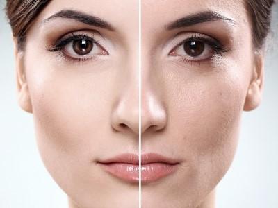 آلودگی های پوست را تا حد بسیار زیادی از بین می برد: