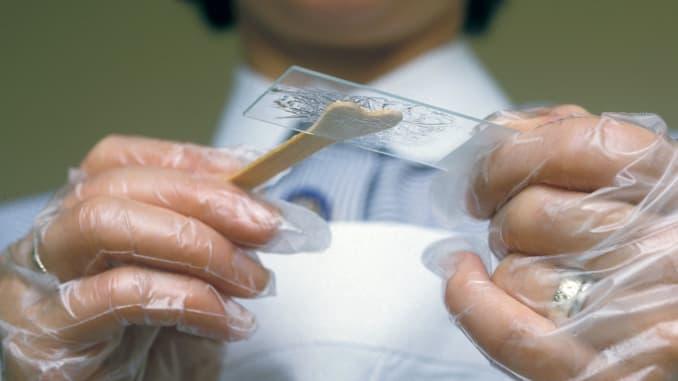 آیا به کمک تست پاپ اسمیر می توان به شناسایی ویروس اچ پی وی پرداخت؟