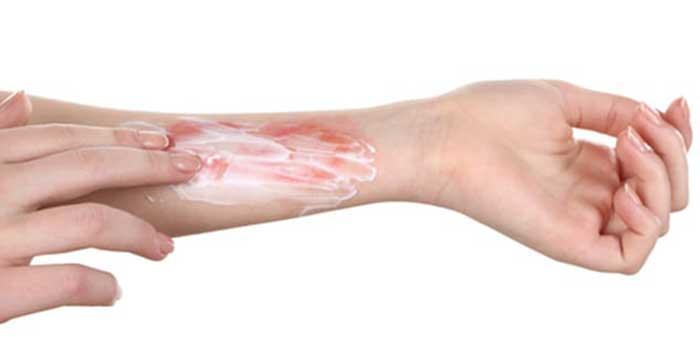 آیا واگیر بیماری های پوستی همانند زگیل به واسطه دستگاه لیزر امکانپذیر است؟
