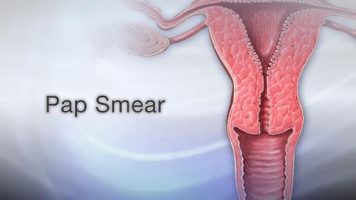 تست پاپ اسمیر برای تشخیص کدام دسته از سرطان های دستگاه تناسلی کاربرد ندارد؟