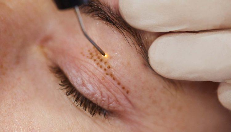 کدامیک از روش های بر طرف کردن پلک با جراحی یا لیزر موثر واقع می شود؟