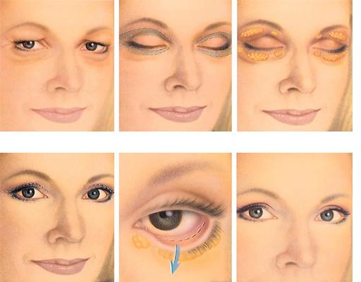 بعد از برداشتن پف بالای چشم با لیزر چه نتیجهای حاصل می گردد؟