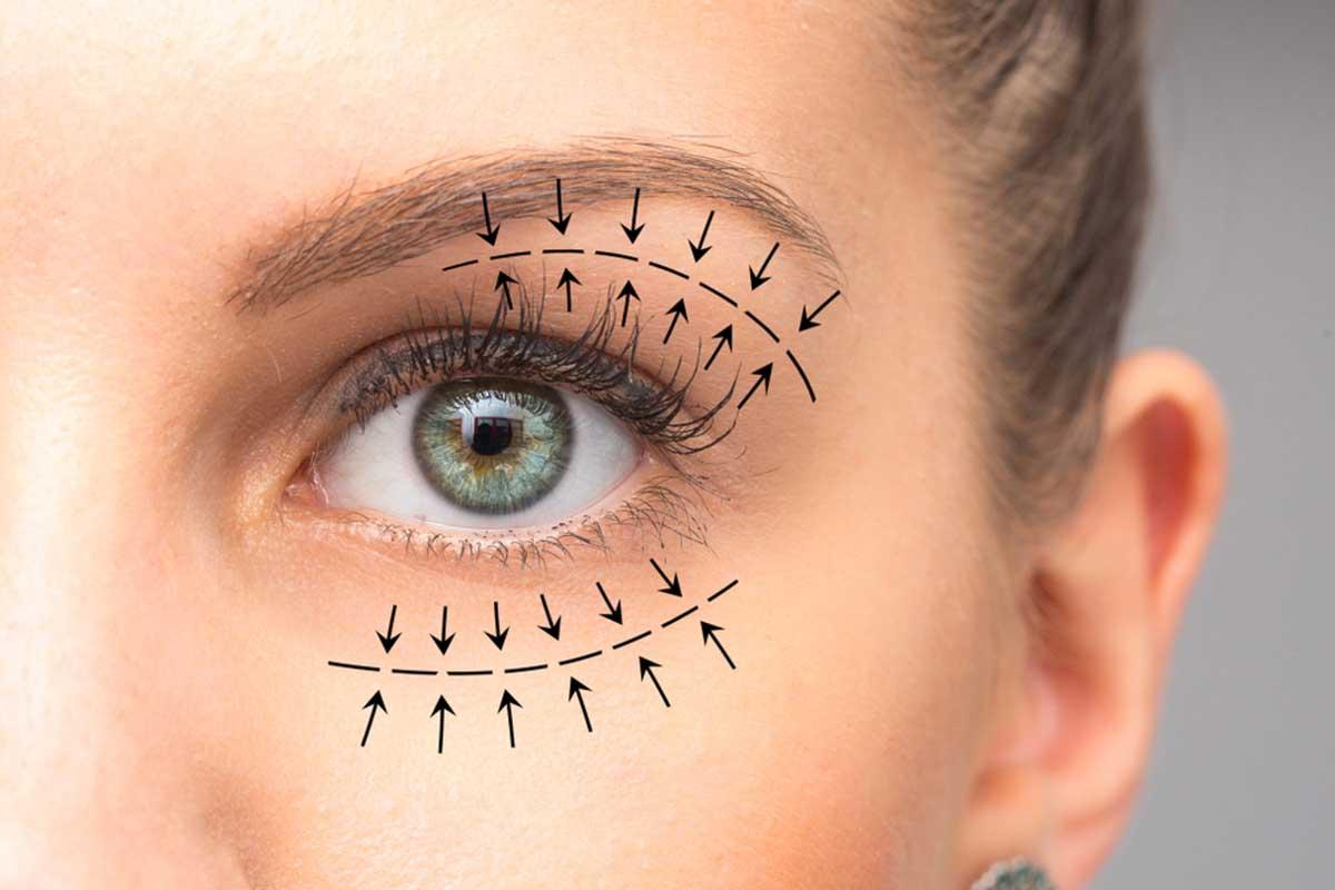 مزایای برداشتن پف بالای چشم با لیزر co2
