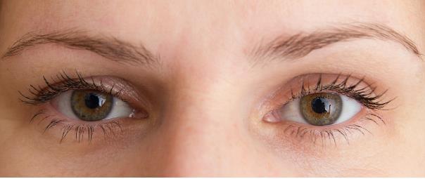 افرادی که در سن پایین تر اقدام به تزریق این ژل بر روی پوست صورت می نمایند
