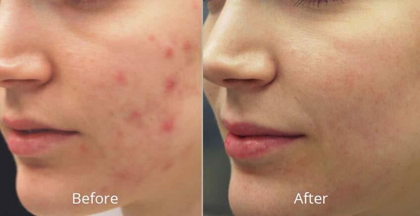 مدت زمان لازم برای بسته شدن پوست آن ناحیه حدود 48 ساعت می باشد