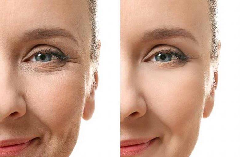 علت ماندگاری زاویه سازی صورت با چربی