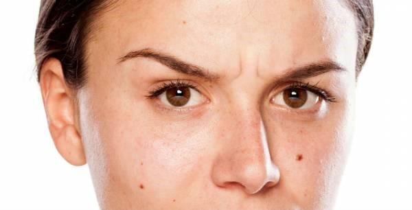 آیا در خصوص شیوه های درمانی برای چین و چروک های صورت و خط اخم اطلاعاتی دارید؟