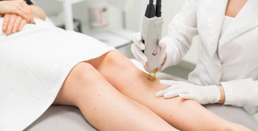 مساحت ناحیه ی مورد درمان توسط لیزر فراکشنال به چه میزانی می باشد؟