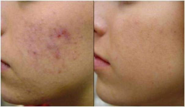 آیا می دانید از شیوه ی درمانی کربوکسی تراپی برای بهبودی پوست در چه ناحیه هایی از بدن می توان استفاده کرد؟