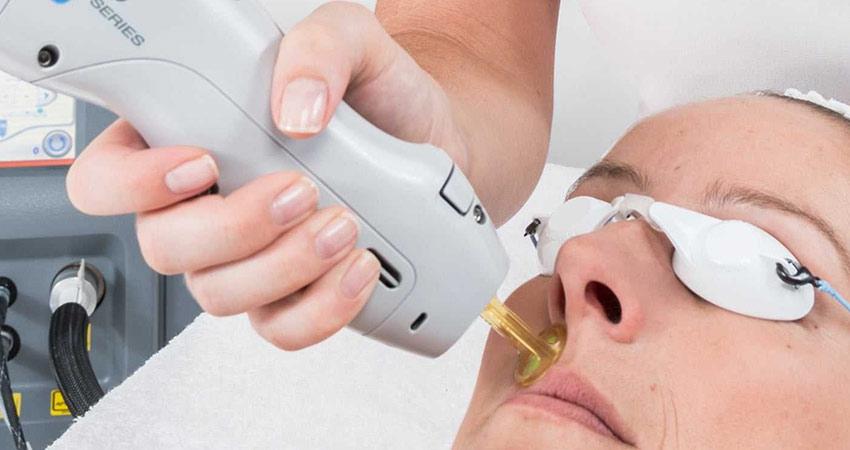 آیا واگیر بیماری های پوستی از طریق لیزر الکساندرایت امکانپذیر است؟