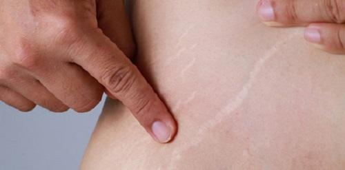 نتایج حذف چربی با لیزر برای از بین بردن ترک های شکم