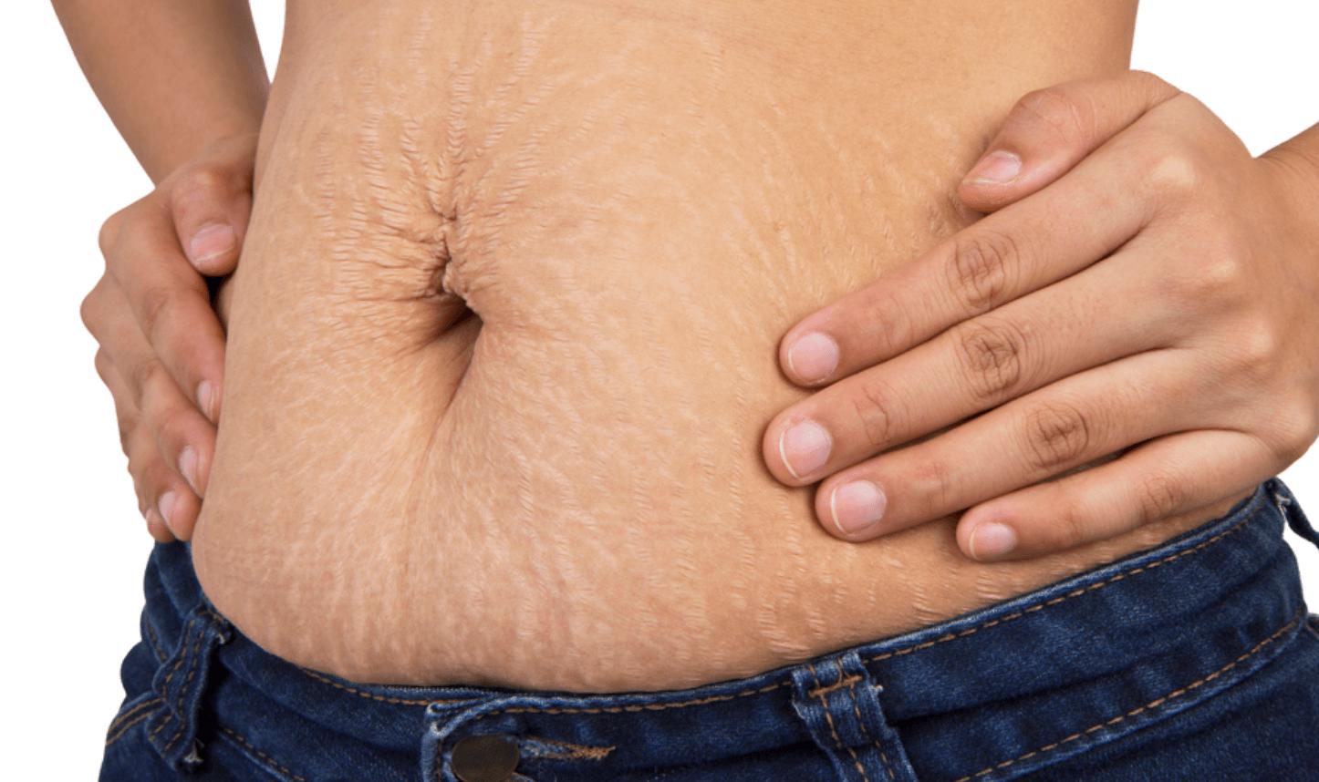 لیزر درمانی و بررسی هزینه لیزر شکم