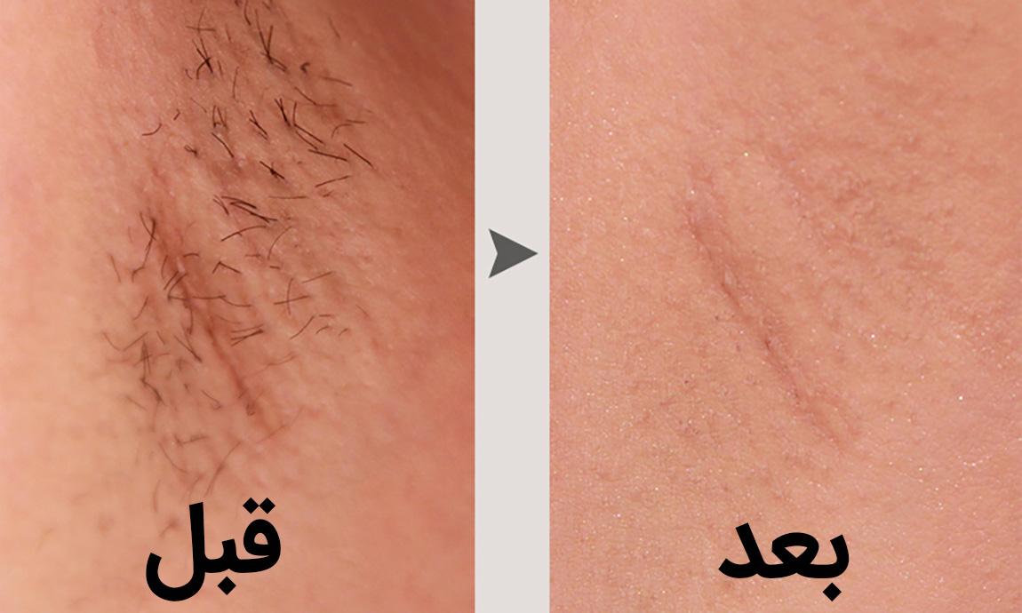 از بین بردن موهای زائد زیر بغل به وسیله ی لیزر چگونه انجام می شود؟