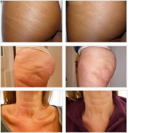 به منظور نتیجه گیری از کربوکسی تراپی ساق پا چند جلسه درمانی نیاز است؟