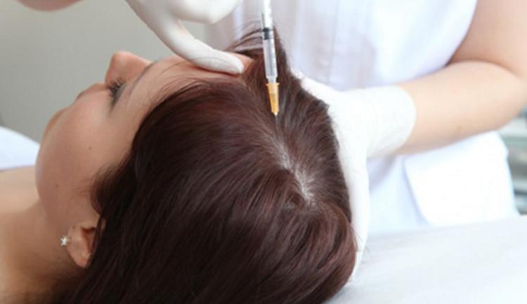 تاثیر استفاده از کربوکسی تراپی برای درمان آلوپسی
