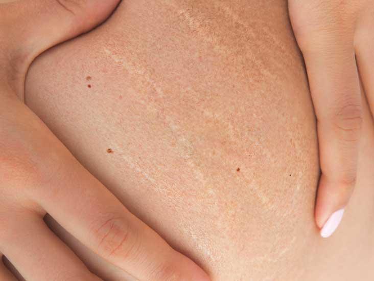 کربوکسی تراپی در درمان های زیبایی و جوانسازی پوست