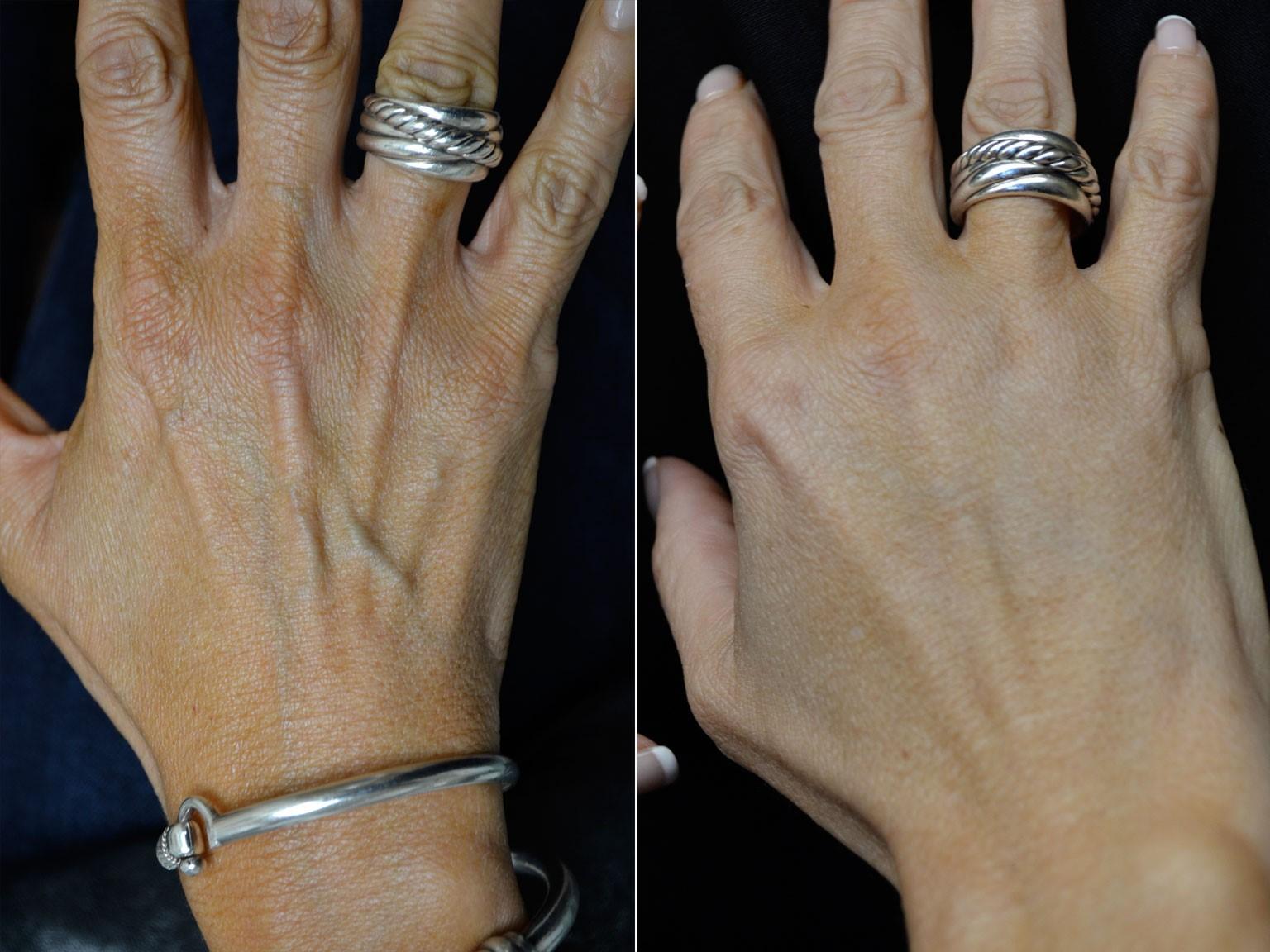 کربوکسی تراپی دست