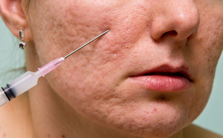 نوع سوراخ هایی که سوزن بر روی پوست ایجاد می کند