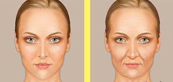 هر ۱۰ سال در عمر فرد، پوست صورت با مشکلات و تغییرات زیادی روبرو خواهد شد