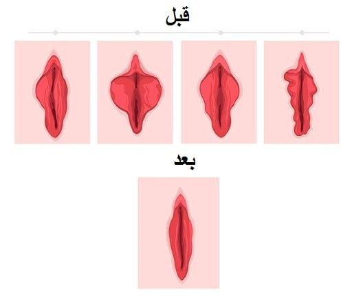 تغییرات ژنتیکی: