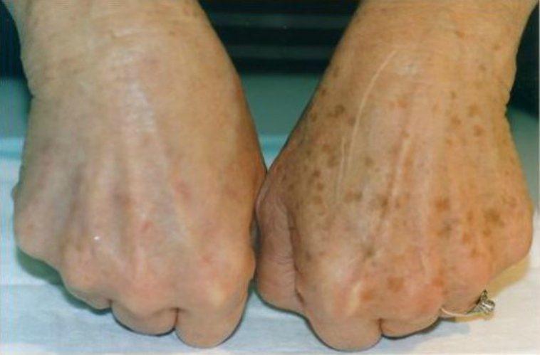 کربوکسی تراپی بیشتر در کدام ناحیه دست ها صورت می گیرد؟